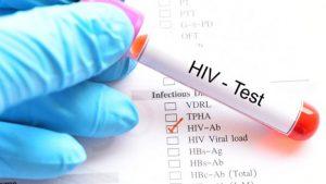 Sondaj: mulţi români nu ştiu cum se transmite virusul HIV