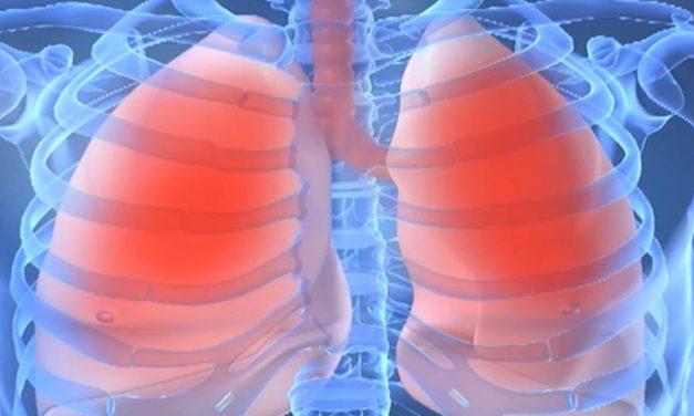 FABC: Peste 3000 de cazuri de cancer pulmonar au rămas nediagnosticate sau netratate de la debutul pandemiei