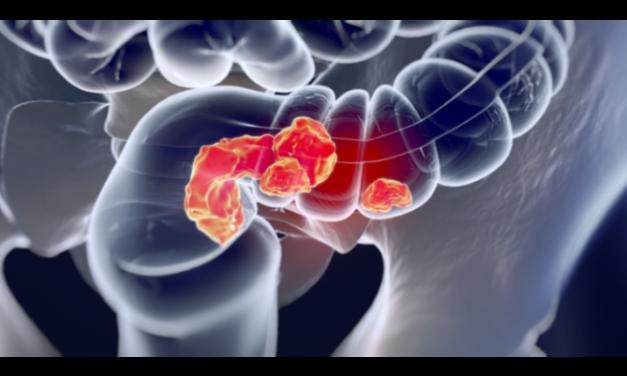 Spitalul Militar Central a demarat un proiect de depistare a leziunilor precanceroase colorectale