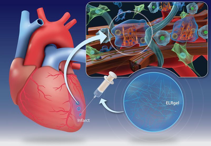 Injecția cu hidrogel poate influența vindecarea mușchiului cardiac după un atac de cord