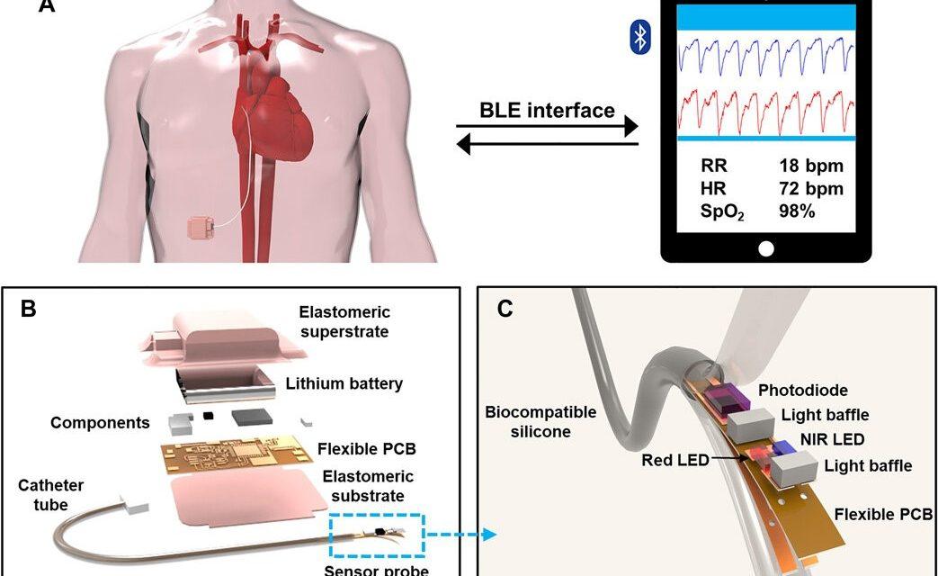 Oximetru wireless, implantabil, conceput pentru a detecta saturația de oxigen
